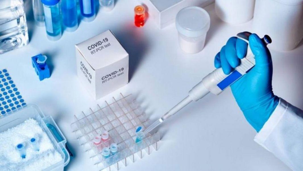 La Dirección General de Coordinación Epidemiológica del Ministerio de Salud Pública actualiza el reporte diario de personas que han contraído COVID-19 en la Provincia. Se incluye el detalle de casos por departamentos y localidades.