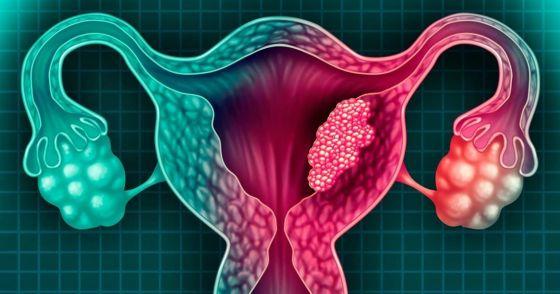 73140-salta-incorporara-la-tecnica-de-captura-hibrida-para-detectar-cancer-de-cuello-uterino